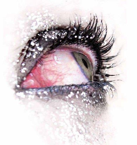 ojo sangrante